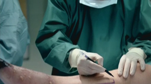 Leg marked for amputation in Quit Smoking TV Ad