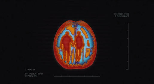 Brain Scan Elderly Man and Woman