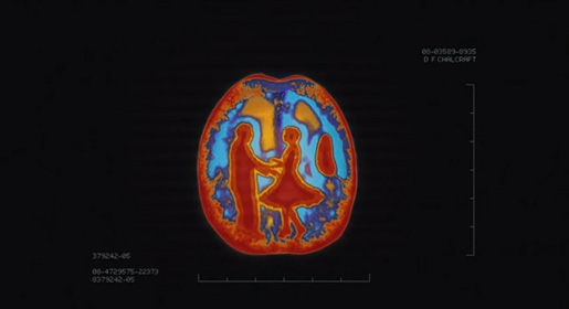 Brain Scan Man and Woman dance