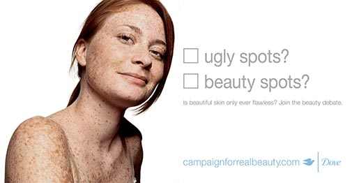 Dove Beauty Spots?