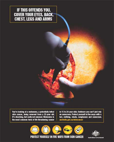 Melanoma surgery - poster in Australian skin cancer awareness campaign