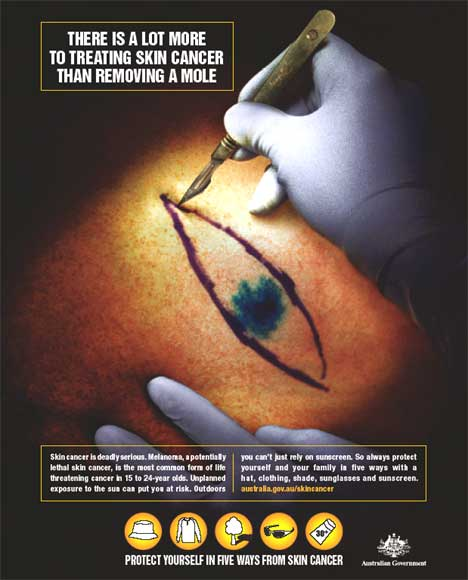 Removal of Melanoma - poster in Australian skin cancer awareness campaign