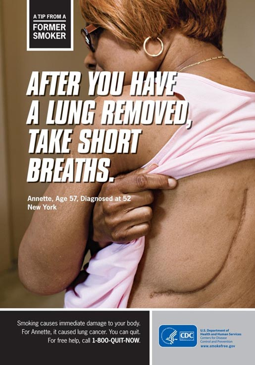 Tips from Former Smoker - Take Short Breaths after losign a lung
