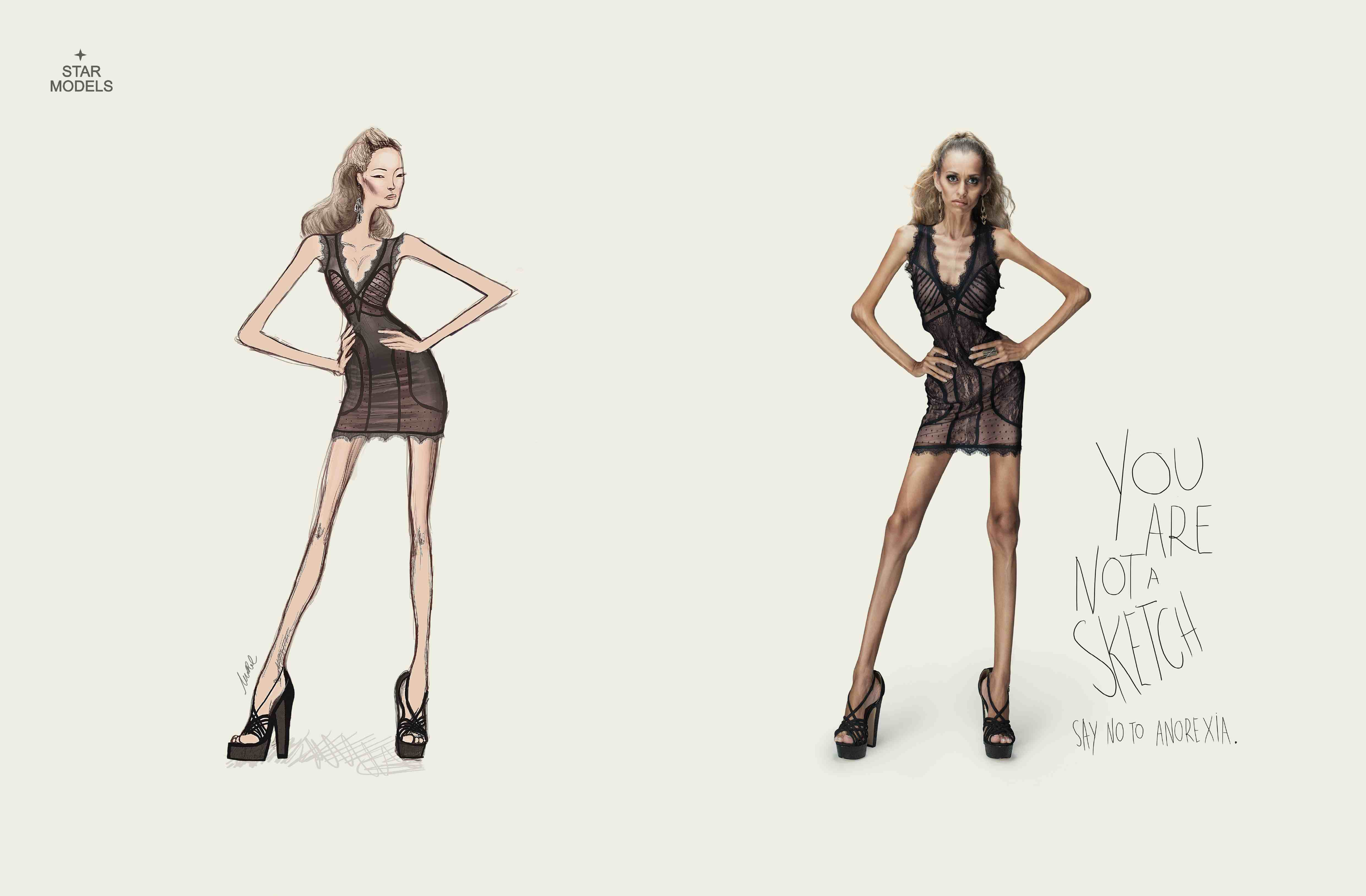 You are not a sketch. Say no to anorexia.
