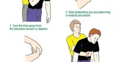 Scrumbags Heimlich Instructions
